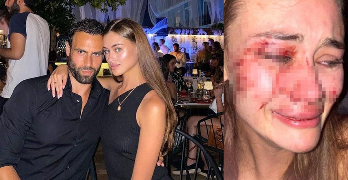 Une top-modèle assure avoir été frappée en Turquie et publie son visage gonflé d'hématomes