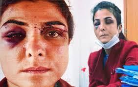"""Turquie : une jeune femme a été acquittée du meurtre de son mari pour """"légitime défense"""""""